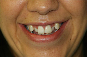facette dentaire remboursement mutuelle