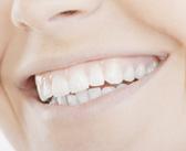 blanchiment des dents tarifs blanchiment des dents en hongrie. Black Bedroom Furniture Sets. Home Design Ideas